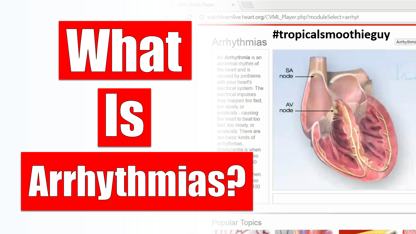 What Is Arrhythmias