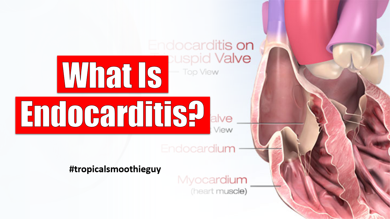 What Is Endocarditis