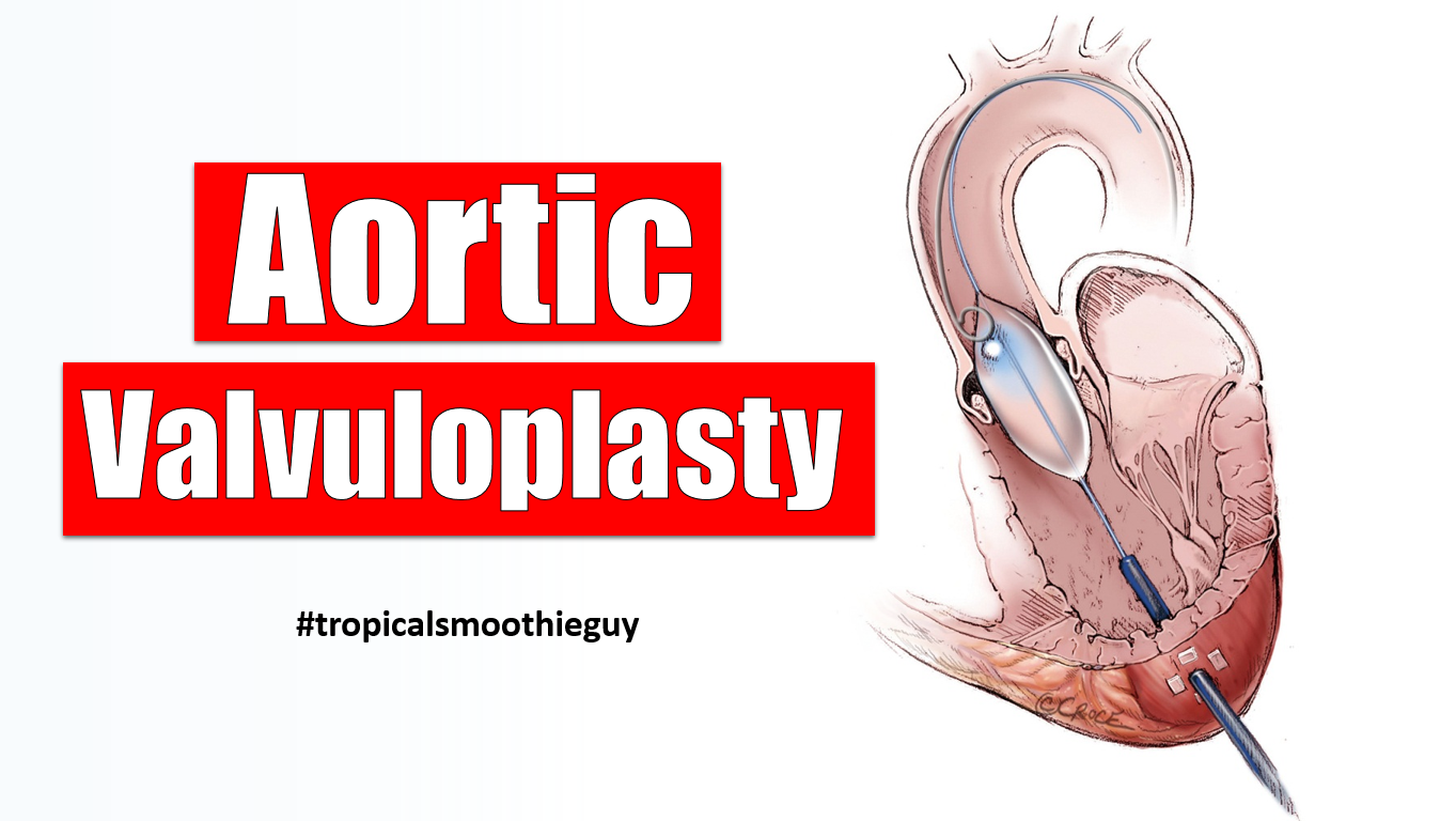 Aortic Valvuloplasty