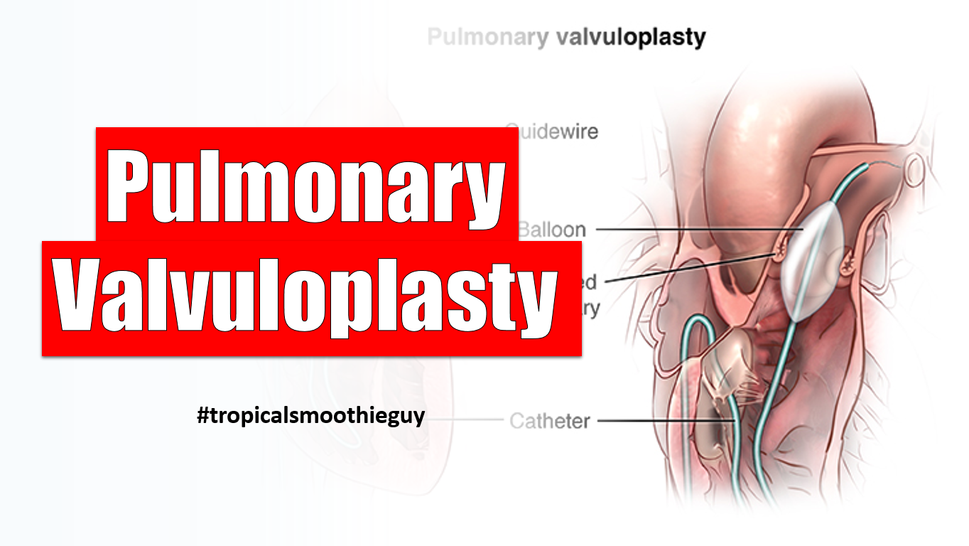 Pulmonary Valvuloplasty