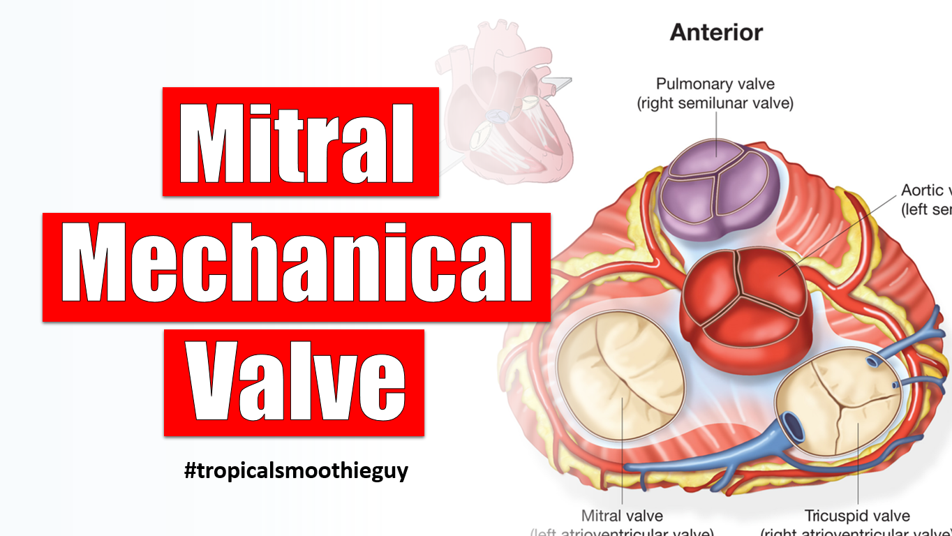 mitral mechanical valve